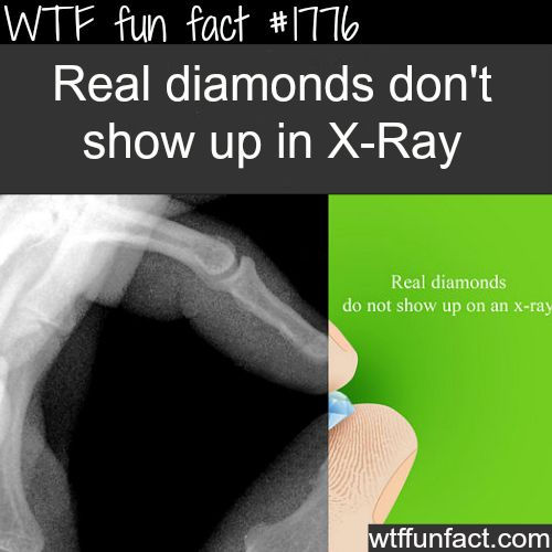real diamonds dont show up in xray